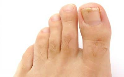 Treating & Preventing Ingrown Toenails