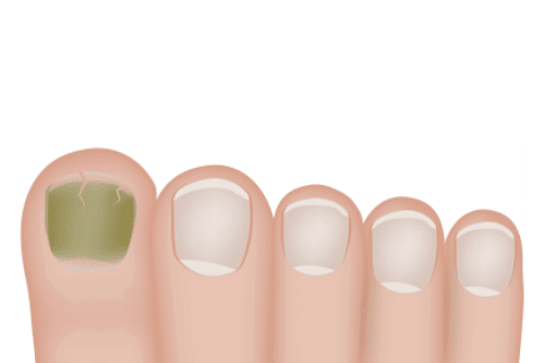 "Understanding ""Green"" Nail Stains"
